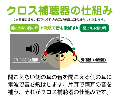 クロス補聴器 仕組み