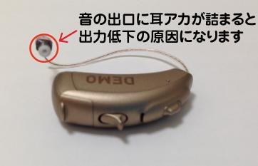 フォナック 補聴器 メンテナンス