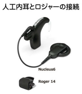 ロジャー 人工内耳
