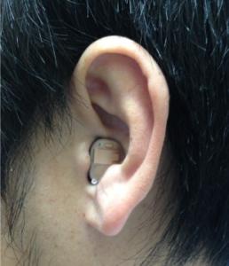 フォナック 耳あな型 装用