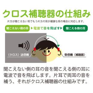 クロス補聴器の仕組み