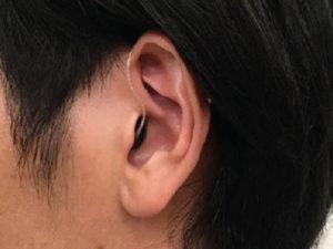 シグニア 耳かけ型 見た目