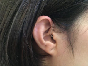 フォナック 防水 耳かけ型