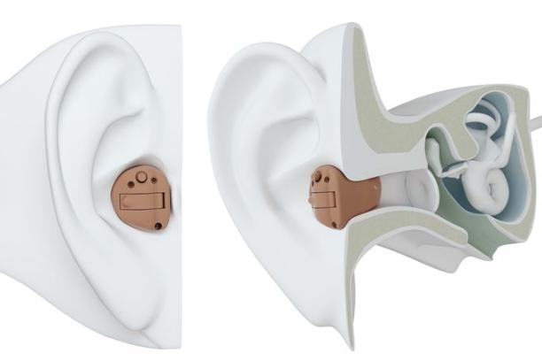 耳あな型 補聴器 見た目