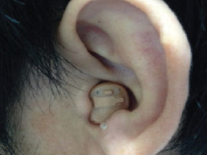 フォナック 耳あな型補聴器